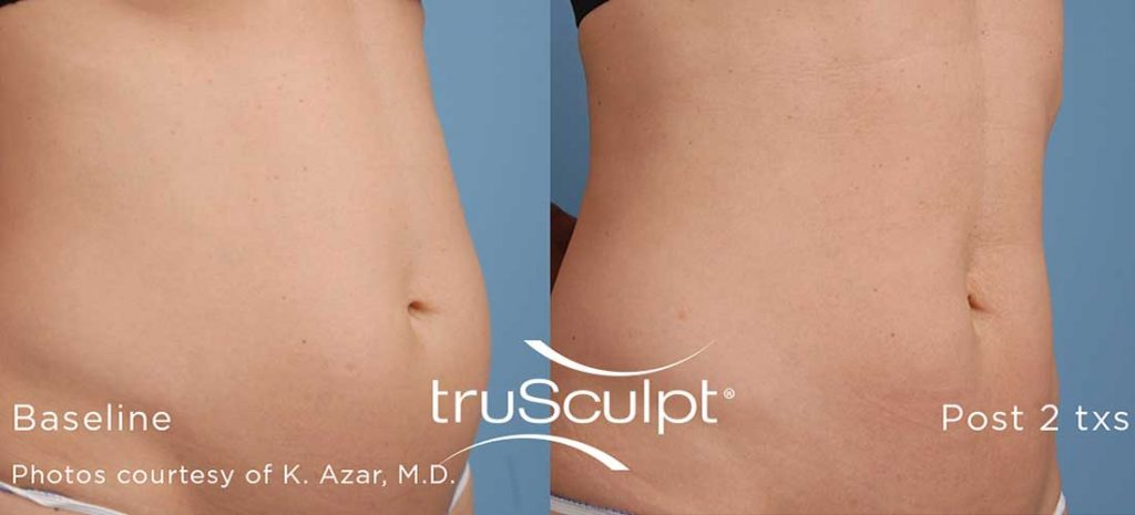truSculpt_Body_1done